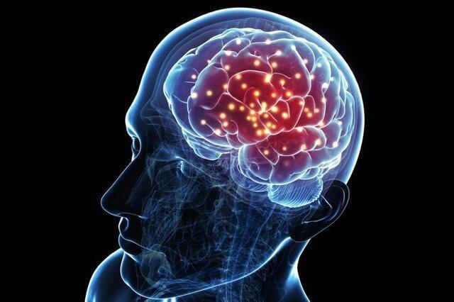 از دست رفتن نورون ها می تواند به سکته مغزی منجر گردد