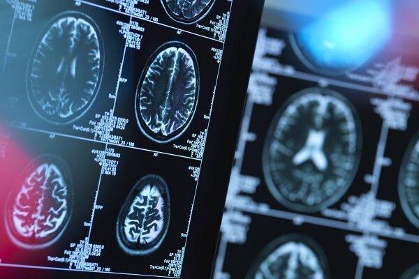 پیش بینی بیماری هانتینگتون با هوش مصنوعی