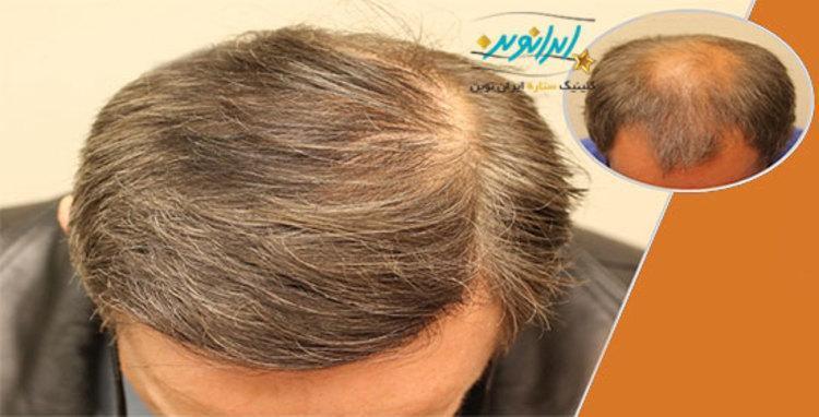جدیدترین روش کاشت مو در کلینیک ستاره ایران نوین